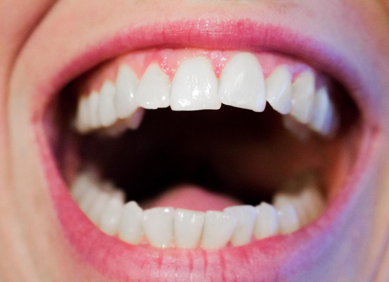 gum disease, gingivitis, periodontitis